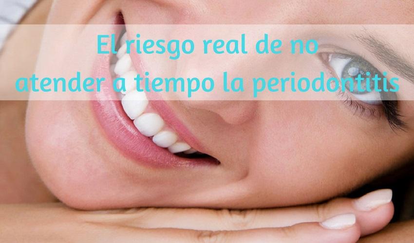 Il vero rischio di trascurare la parodontite nel tempo