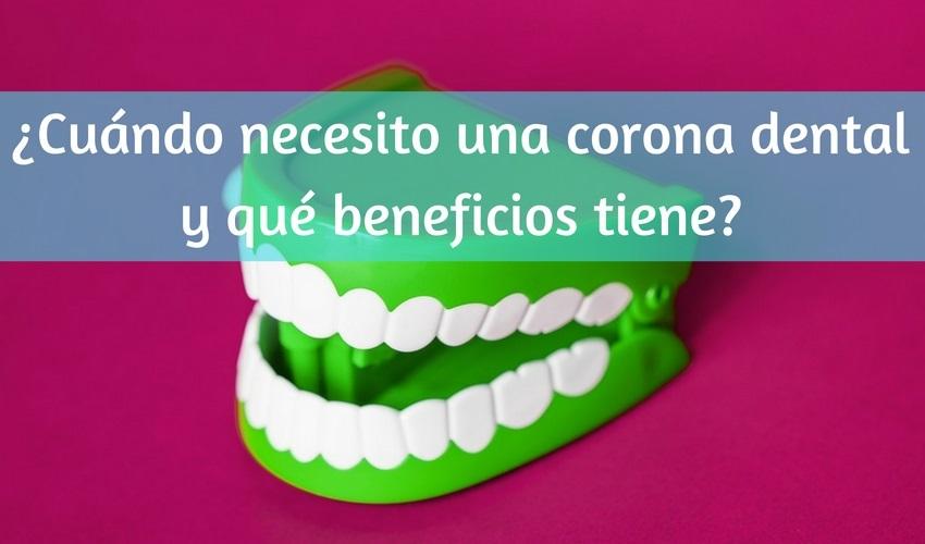 Quando ho bisogno di una corona dentale e quali vantaggi ha?