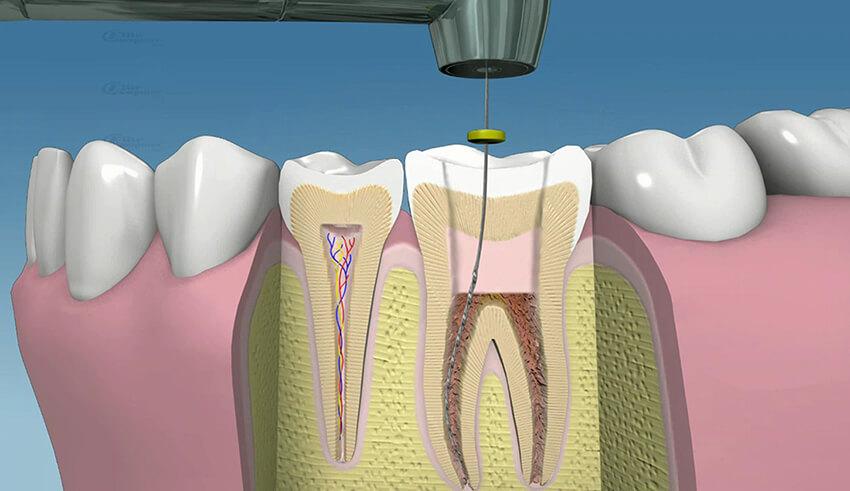 Differenza tra endodonzia ed estrazioni, di che trattamento hai bisogno?