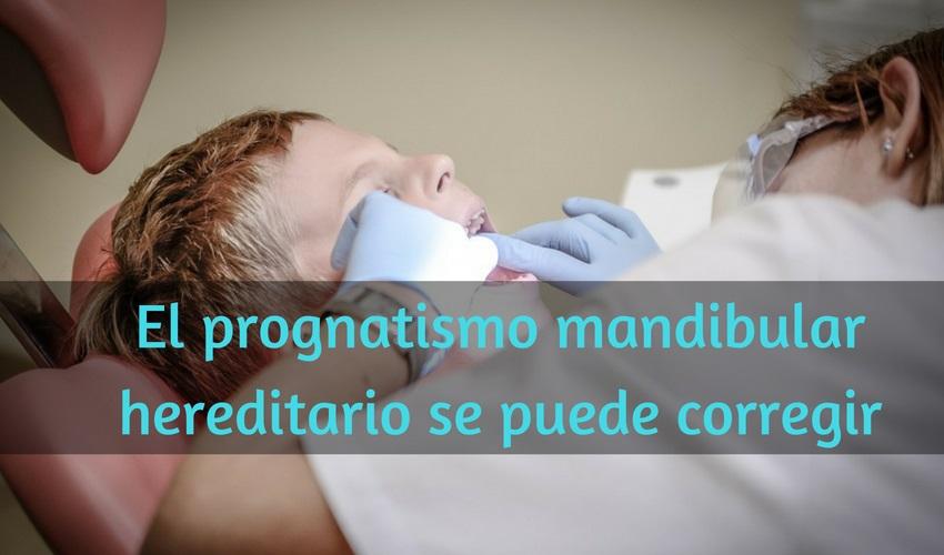 Il prognatismo mandibolare ereditario può essere corretto