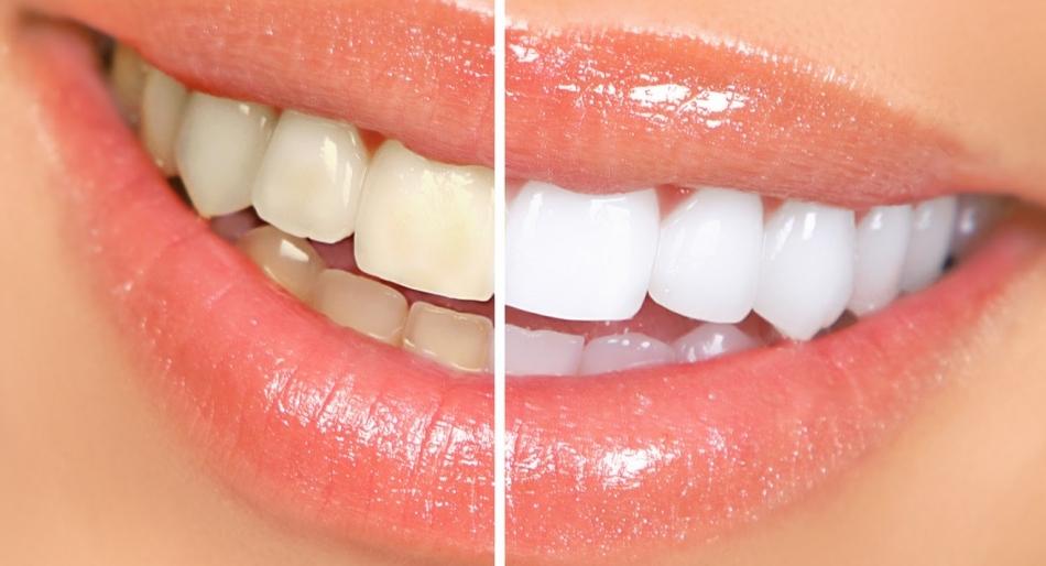 Estetica dentale e odontoiatria conservativa