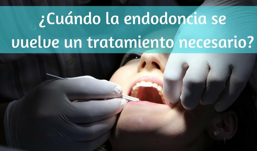 Quando l'endodonzia diventa un trattamento necessario?