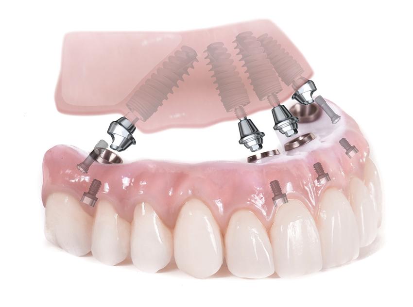Impianti dentali Tutti su 4