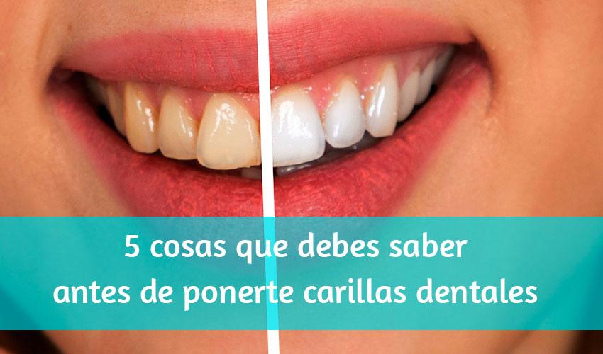5 cose che dovresti sapere prima di indossare le faccette dentali.