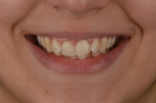 Caso di ortodonzia IV