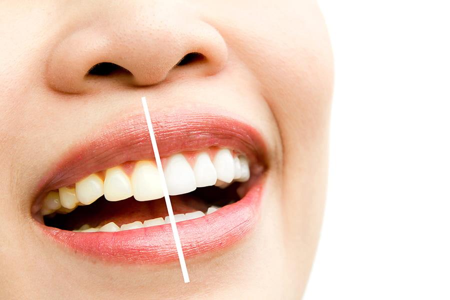 sbiancamento dei denti
