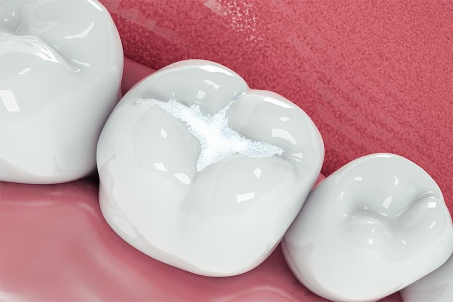otturazione di un dente marcio