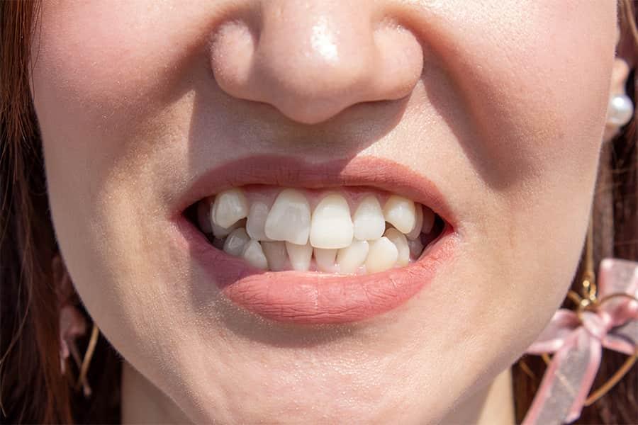 disallineamento dentale