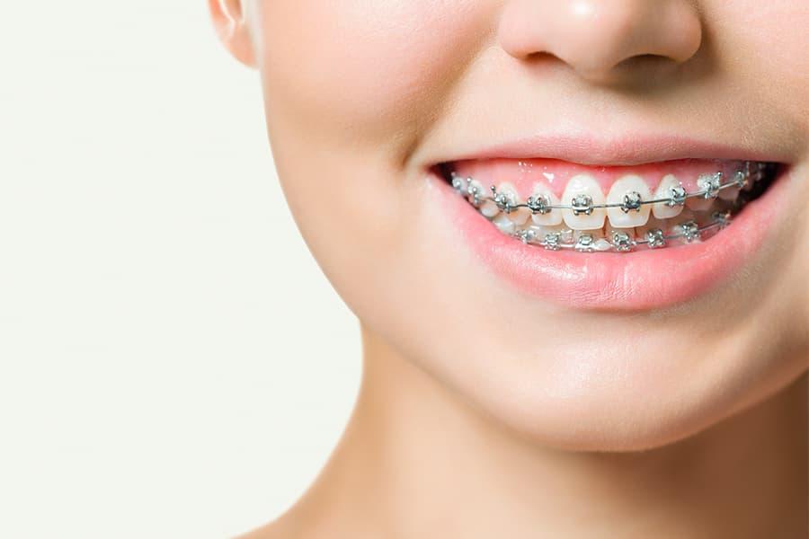 morso incrociato ortodontico